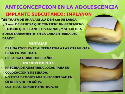 ANTICONCEPCION EN LA ADOLESCENCCIA-44.pptx
