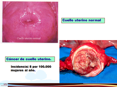 PREVENCION DEL CANCER DE CERVIX-1.jpg